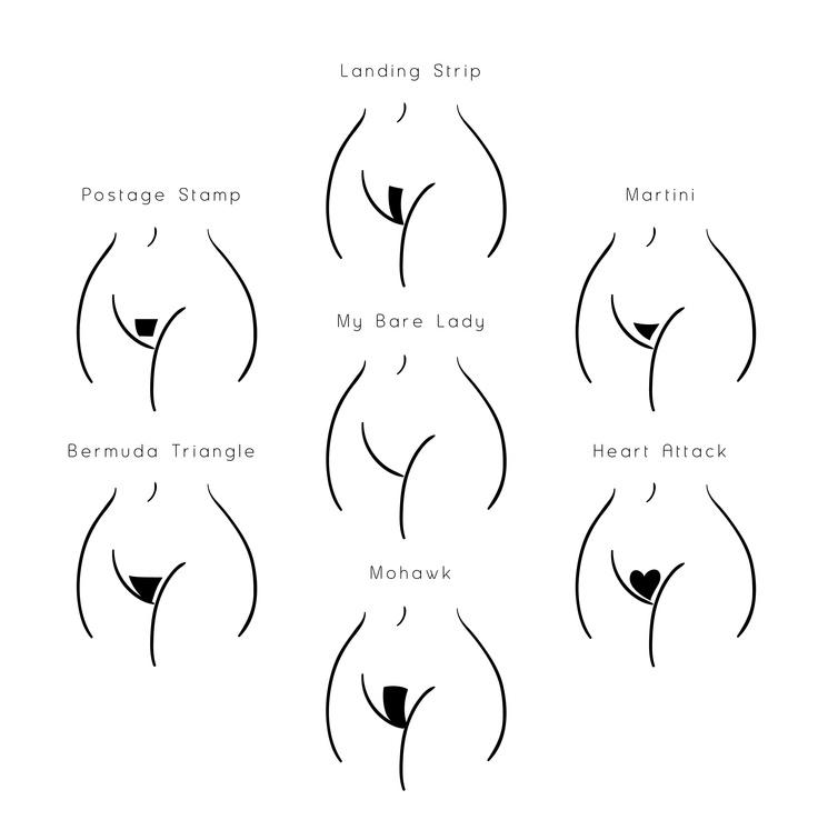 Női intim fazonok